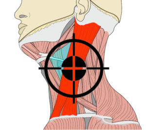 How to knock someone out - sternocleidomastoid target